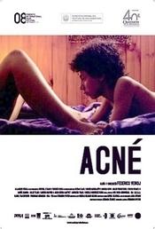 Subtitrare Acné