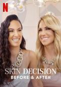 Subtitrare Skin Decision: Before and After - Sezonul 1